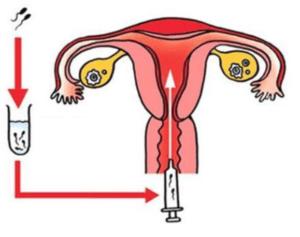 ERA (名称:エラ・イーアールエー):子宮内膜着床能検査