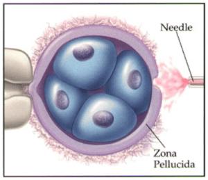 アシステッドハッチング(AHA)・生殖補助技術